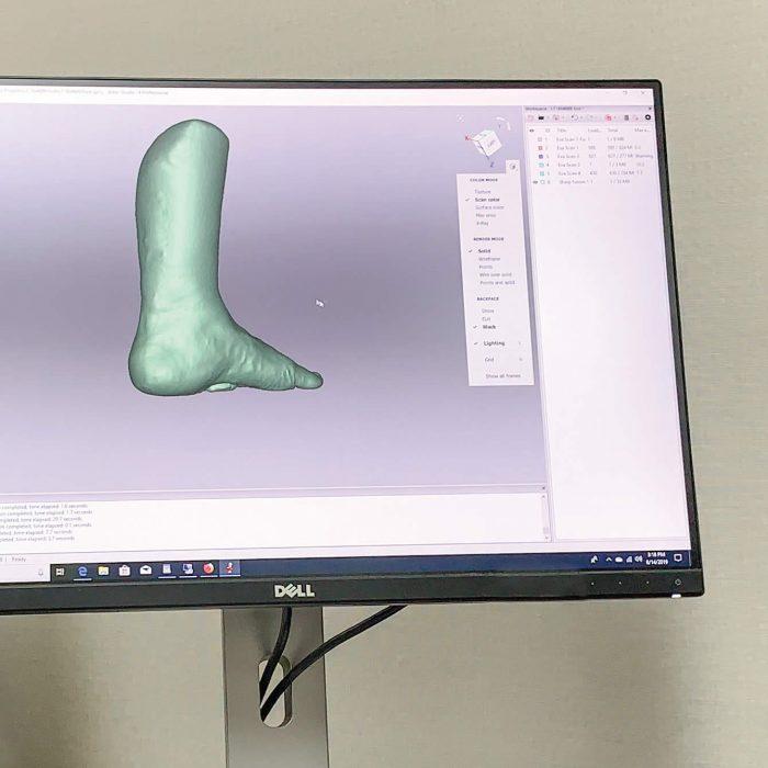 3D scanning custom orthotics