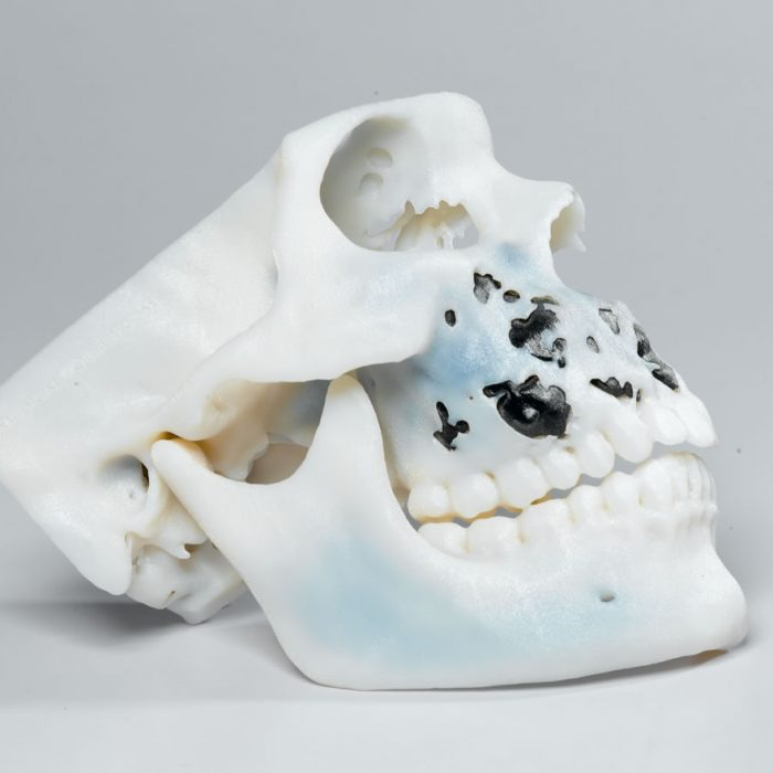 3D Printed Skull crated by Medical Designers