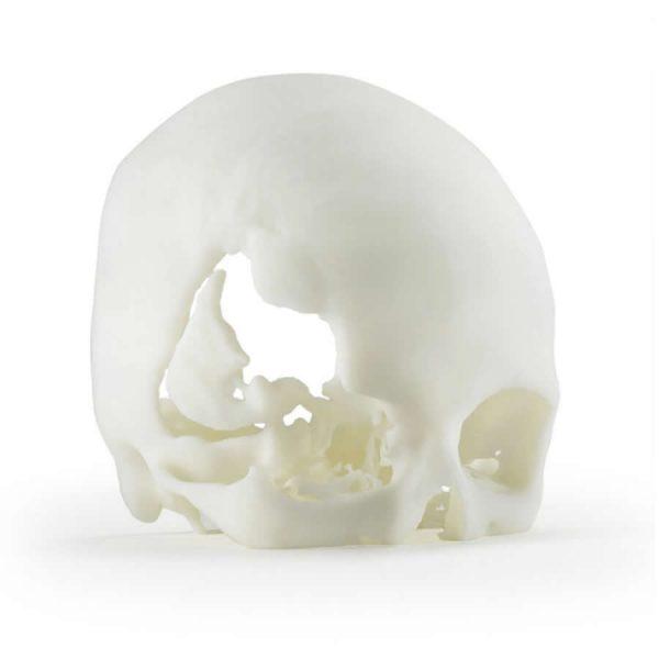ABS M30i 3D printed skull