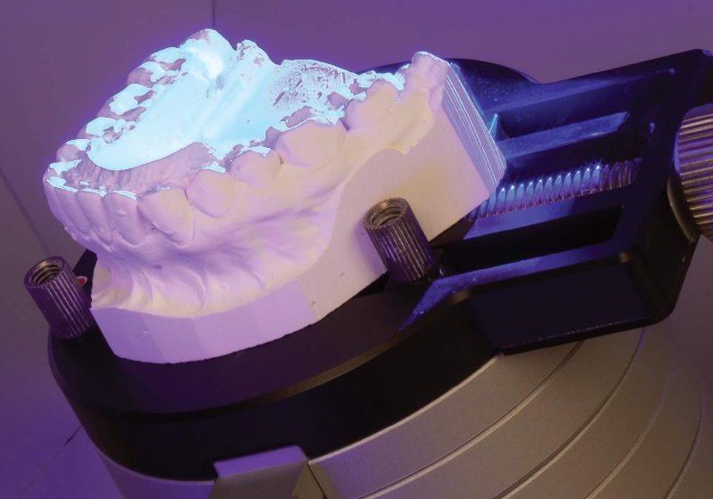 3D dental scan
