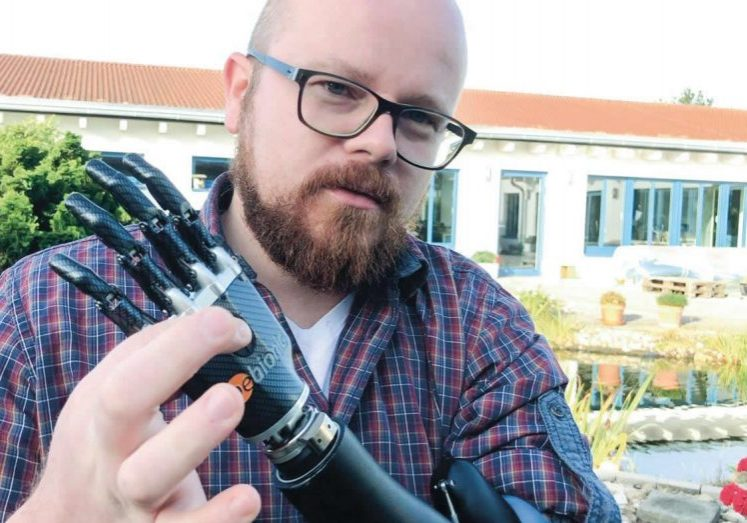 Artec bionic arm