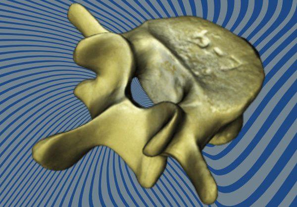 Bone 3D Scan