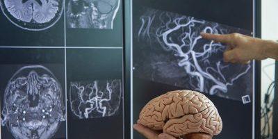 Neurosurgery 3D printed model