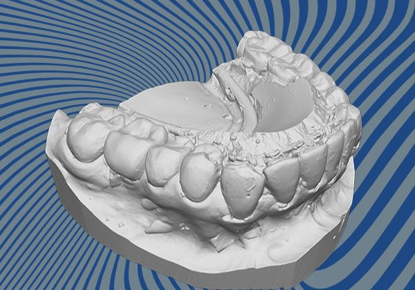 Teeth 3D scan