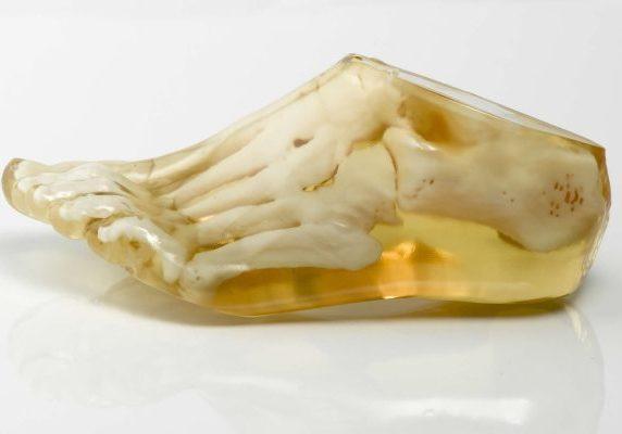 Translucent medical foot model