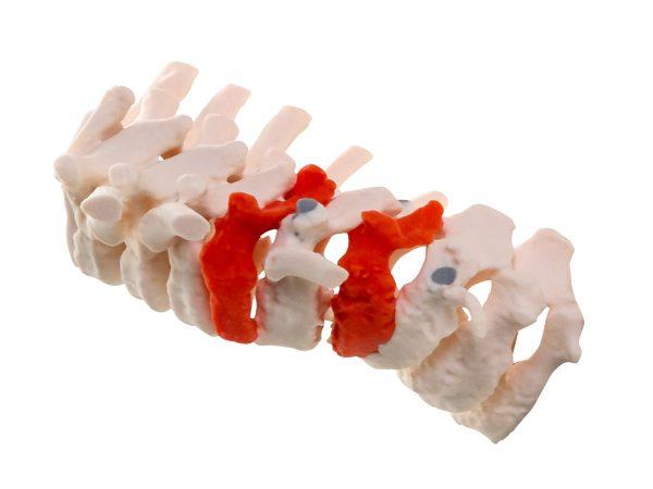 MediJet Spine Model