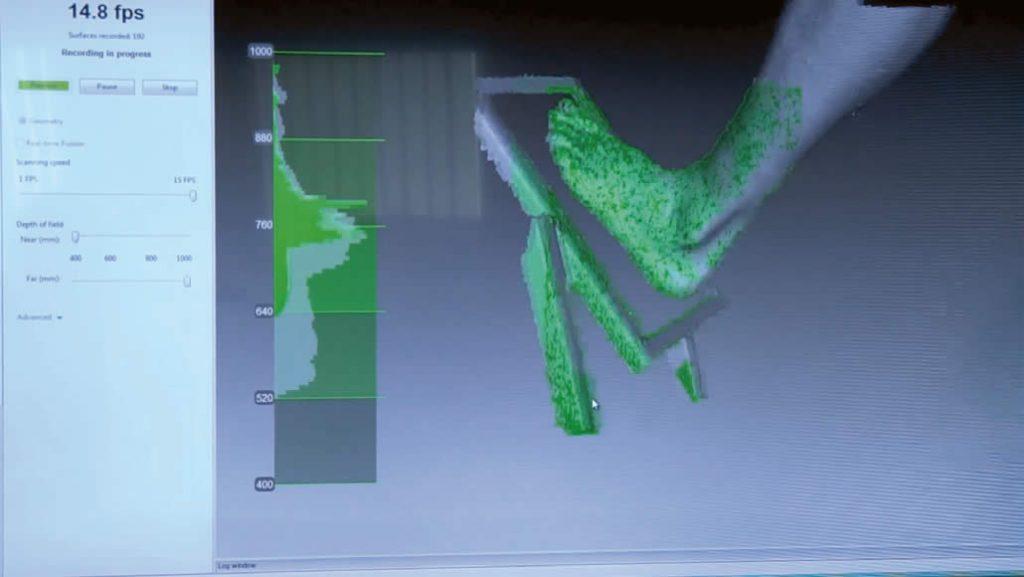 Orthopedic scan data