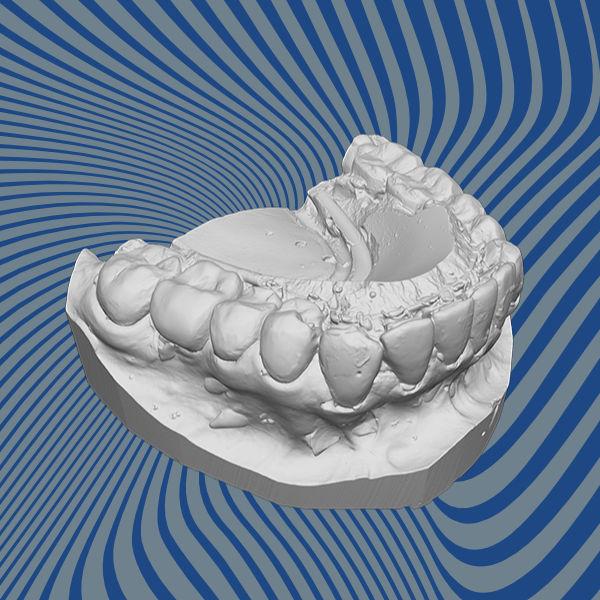 Teeth 3D scan