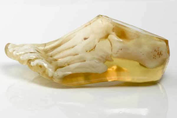 Translucent medical foot model