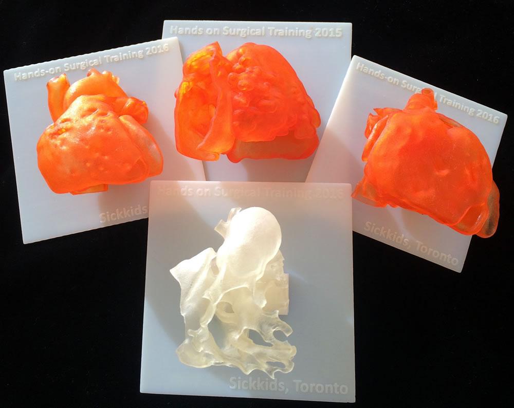 3D printed heart models