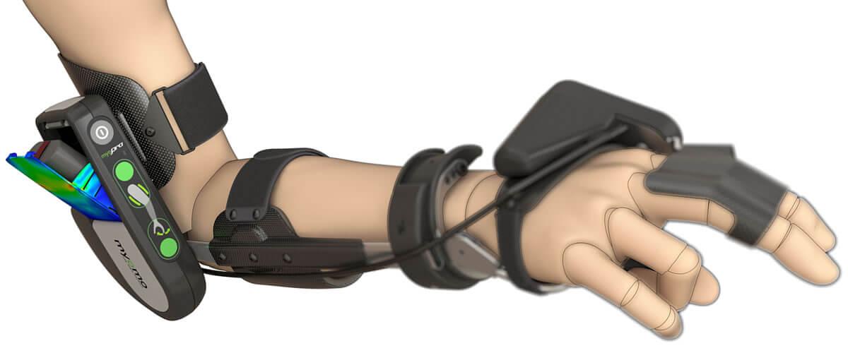 Myomo MyoPro Orthotic Brace