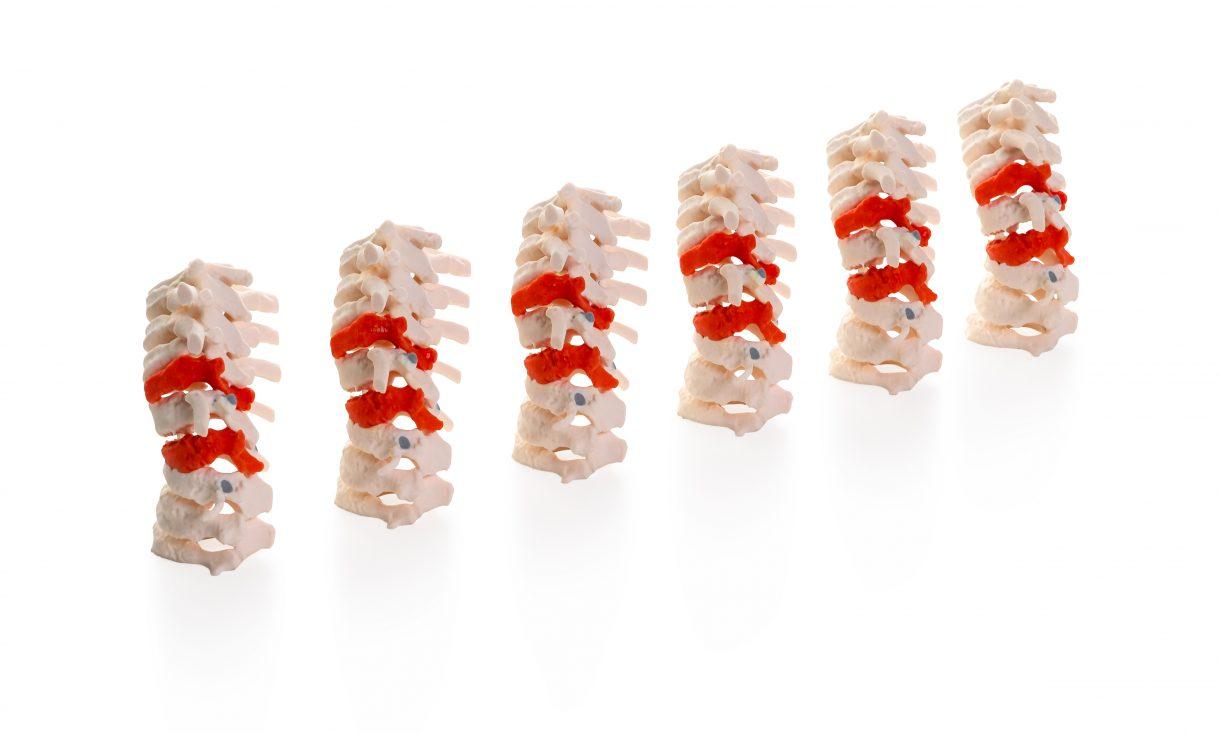 Spine medical models 3D printed on the J5 Medijet